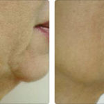 Alma Accent Before and After | Medshare Laser