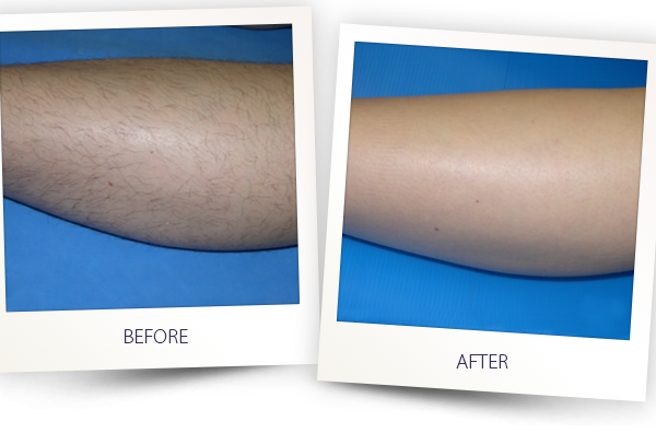 Alma Soprano Before After Laser Treatment