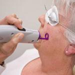 Candela VBeam Cosmetic Laser   Medshare Laser