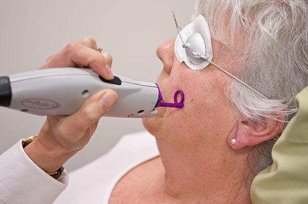 Candela VBeam Cosmetic Laser | Medshare Laser