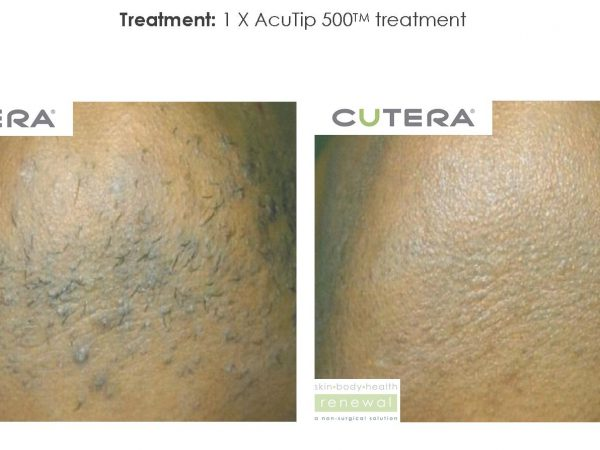 Cutera CoolGlide Before After Treatment | Medshare Laser