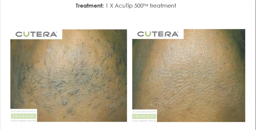 Used Cutera Coolglide Aesthetic Equipment For Sale