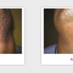 Candela GentleYAG Hair Removal Laser | Medshare Laser