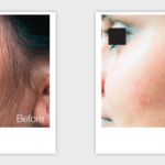 Candela GentleYAG Before After | Medshare Laser