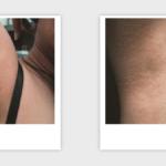 Candela GentleMAX Hair Removal | Medshare Laser