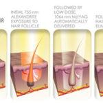 Laser Hair Removal   Cynosure Elite MPX   Medshare Laser