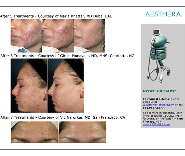 Laser Acne Treatment | Medshare Laser
