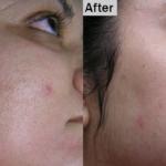 Acne Laser Treatment | Medshare Laser
