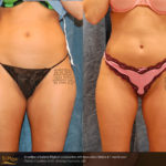 Cynosure SmartLipo Treatment Results   Thighs   Medshare Laser