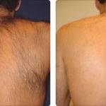 Alma Soprano XL Before After | Medshare Laser