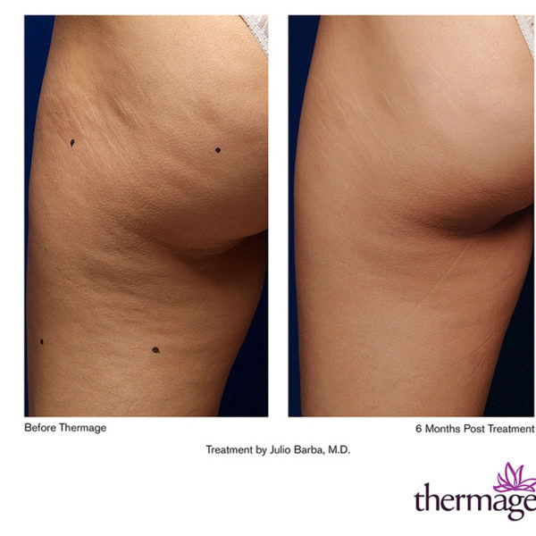 Solta Medical Thermage CPT Cellulite Treatment | Medshare Laser
