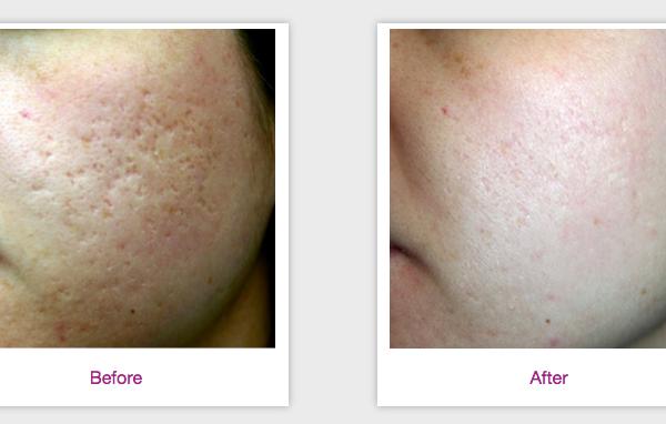 Syneron eLaser Acne Scars | Medshare Laser