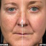 Solta Medical Fraxel SR1500 Age Spot Treatment   Medshare Laser