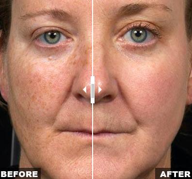 Solta Medical Fraxel SR1500 Age Spot Treatment | Medshare Laser
