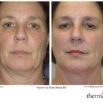 Solta Medical Thermage CPT Skin Tightening | Medshare Laser