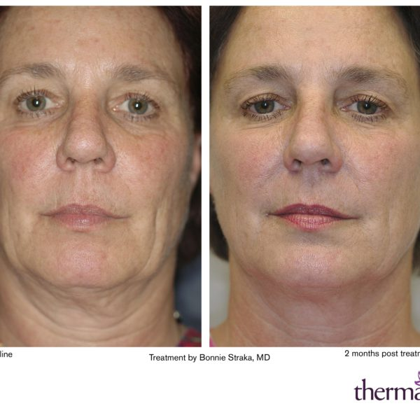 Solta Medical Thermage CPT Skin Tightening | Medshare Laser