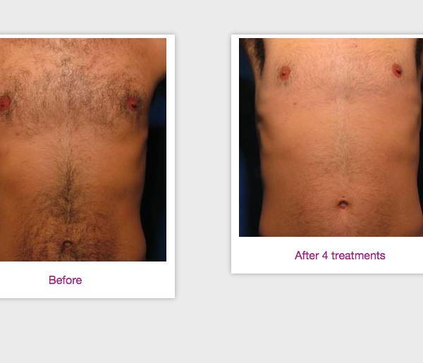Syneron eLaser Hair Removal | Medshare Laser