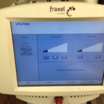 Solta Medical Fraxel SR1500 Display   Medshare Laser
