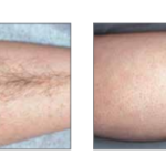 Lumenis Lume One Laser Hair Removal   Medshare Laser