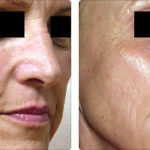 Alma Harmony Before and After   Medshare Laser