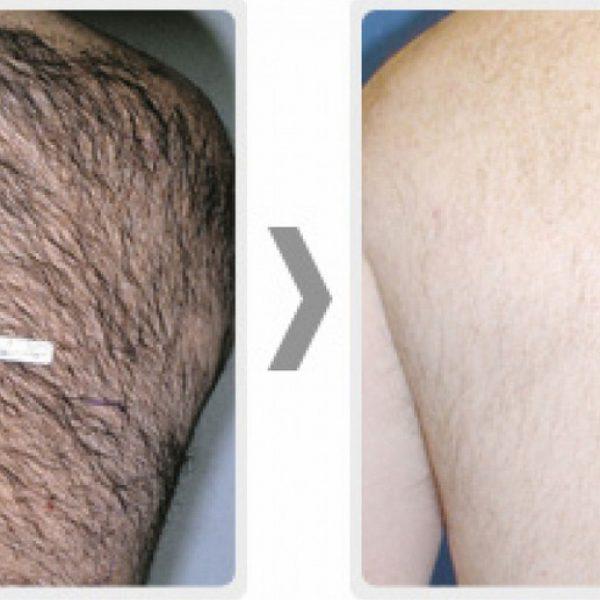 Palomar StarLux 500 Hair Removal Laser | Medshare Laser