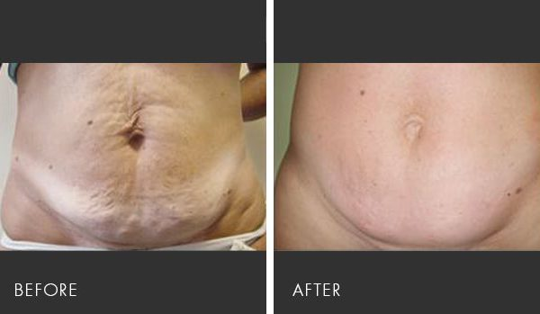 Syneron Velashape Body Contouring Before & After | Medshare Laser