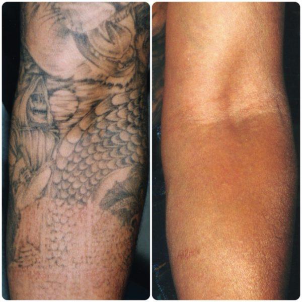 Hoya Con Bio RevLite | Tattoo Removal | Medshare Laser