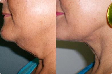 Cynosure SmartLipo Triplex | Fat Reduction | Medshare Laser