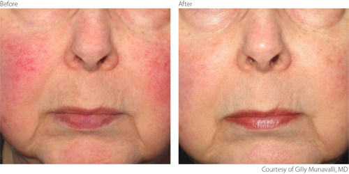 Lumenis M22 Laser Rosacea Treatment | Medshare Laser