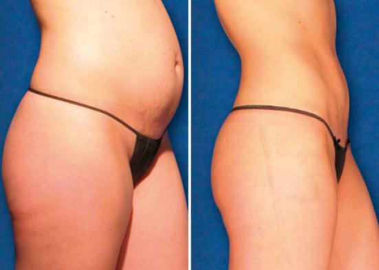Zerona Before After | Fat Reduction | Medshare Laser